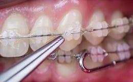 对待牙的牙医与陶瓷托架,使用蚊子在牙齿办公室 牙宏观射击有括号的 库存照片