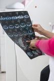 对患者的女性Explaining医生胸部X光报告 免版税库存图片
