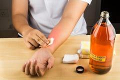 对皮肤痒, fung的苹果汁醋有效的自然补救 库存照片