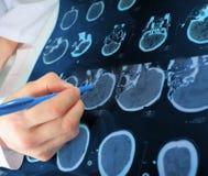 对CT区域的医生点扫描 免版税库存照片