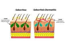 导致Seborrhea皮肤和头发 头屑脂溢性皮炎 ?? 皮脂腺的官能不良 库存例证