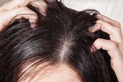 导致发痒的头皮的头垢 库存图片