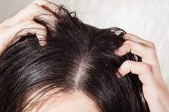 导致发痒的头皮的头垢 免版税库存照片