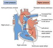 导致Eisenmenger综合症状的心脏瑕疵 库存图片