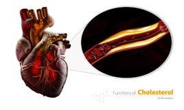 封锁的血管,与胆固醇积累, 3d的动脉例证隔绝了白色 免版税图库摄影