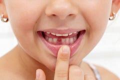 小女孩第一个牙遗漏 免版税库存照片