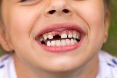 小女孩跌倒了乳齿 与孔的儿童的嘴在牙之间 免版税库存照片