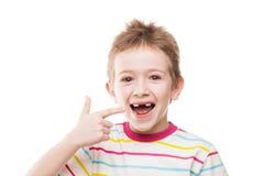 第一婴孩牛奶或临时牙掉下来 库存照片