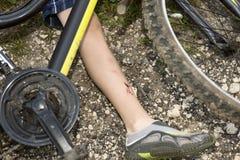 少年从自行车下落了和受了损伤 免版税库存照片