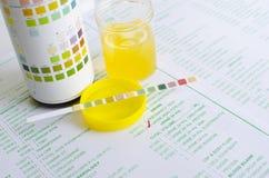 尿液分析 库存照片