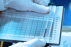 工作在血液实验室的科学家 免版税库存图片