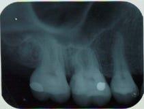 左uper牙下颌x光芒  免版税库存图片