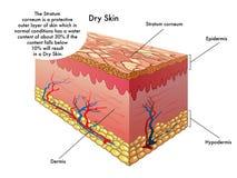 干性皮肤 库存图片