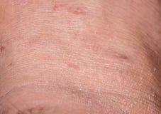 干燥裂化的皮肤在冬天 免版税库存照片