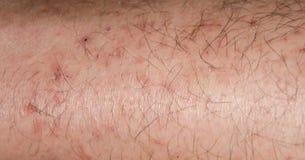 干燥裂化的皮肤在冬天 免版税图库摄影
