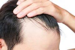 年轻医疗保健香波的人严肃的掉头发问题和 库存图片