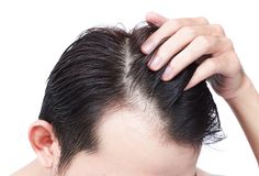 年轻医疗保健香波的人严肃的掉头发问题和 库存照片
