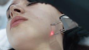 年轻女人的接近的面孔激光面部剥的做法的,慢动作 影视素材