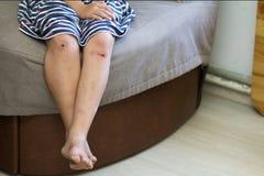 幼儿女孩赤足腿特写镜头以被挫伤的损伤 库存图片