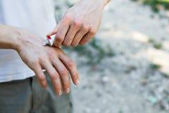 应用一副奶油色镇痛剂于干燥片状皮肤在牛皮癣、湿疹和其他干性皮肤情况的治疗 库存图片