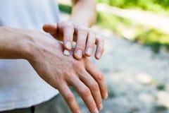 应用一副奶油色镇痛剂于干燥片状皮肤在牛皮癣、湿疹和其他干性皮肤情况的治疗 免版税库存图片