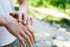 应用一副奶油色镇痛剂于干燥片状皮肤在牛皮癣、湿疹和其他干性皮肤情况的治疗 库存照片