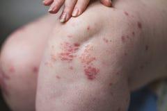 应用镇痛剂于干燥片状皮肤在牛皮癣、湿疹和其他干性皮肤情况的治疗 健康 免版税图库摄影