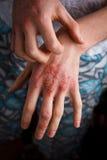 应用镇痛剂于干燥片状皮肤在牛皮癣、湿疹和其他干性皮肤情况的治疗 图库摄影