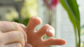 应用lation奶油色香脂润肤霜于损坏的干燥被脱水的手指皮肤 股票录像