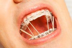 张与括号和正牙学圆环的人嘴 免版税库存照片
