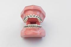 张开与完善的牙和括号的人为人的下颌 库存照片