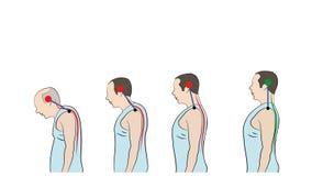 弯身的姿态的发展与年龄的,显示脊椎的增长的曲度 皇族释放例证