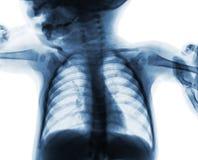 影片孩子胸部X光  被隔绝的背景 免版税库存图片