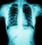 影片胸部X光:显示妇女的正常胸口 免版税图库摄影