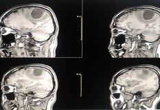 影片MRI 头脑的 库存图片