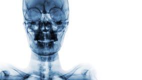 影片X-射线头骨AP :显示正常人的` s头骨并且删去区域在右边 库存图片