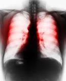 影片X-射线扫描人 库存照片