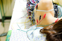 得到针灸治疗的亚裔女孩 免版税图库摄影