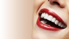 微笑与在空白背景的极大的牙的妇女 库存照片