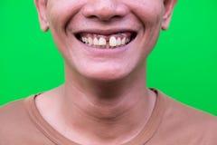 微笑亚裔的人显示他的牙不吸引人在绿色背景 免版税图库摄影