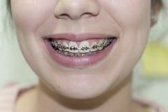 微笑的妇女显示牙齿括号 免版税库存图片