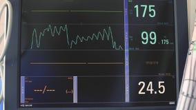 心动电描记器的显示,电子活动患者的心跳和血压,在的图的图表 股票录像