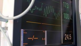 心动电描记器的显示,电子活动患者的心跳和血压,在的图的图表 股票视频