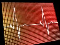 心率监控程序显示心脏病 库存图片