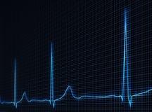 心电图 向量例证