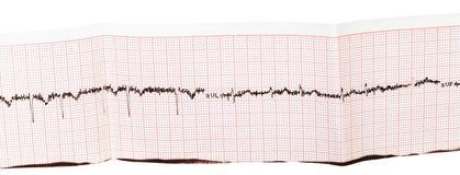 心电图(ECG, EKG)在纸 免版税库存图片