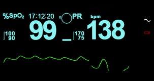 心电图ecg标志图表在操作急诊室的医院手术的显示耐心心率,医疗保健 股票视频