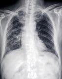 心脏和胸口的前面X-射线图象 免版税库存图片