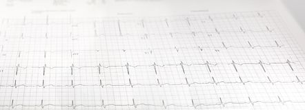 心脏测试ekg医学实验室报告 免版税图库摄影