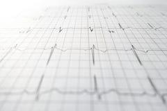 心脏测试ekg板料印刷品 免版税图库摄影